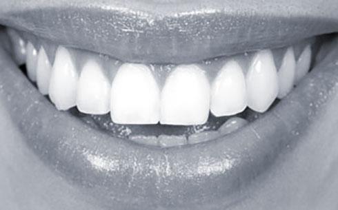 periodoncia, ortodoncia burjassot
