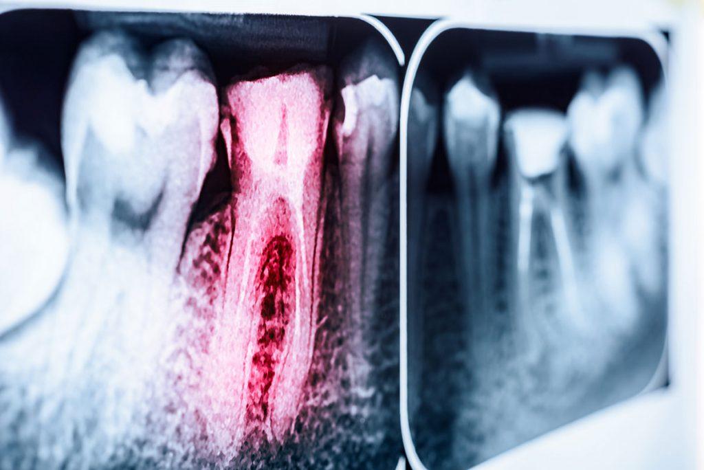 endodoncia burjassot