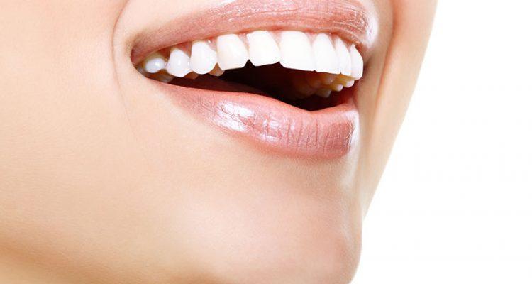 estetica dental burjassot, dentistas en burjassot,