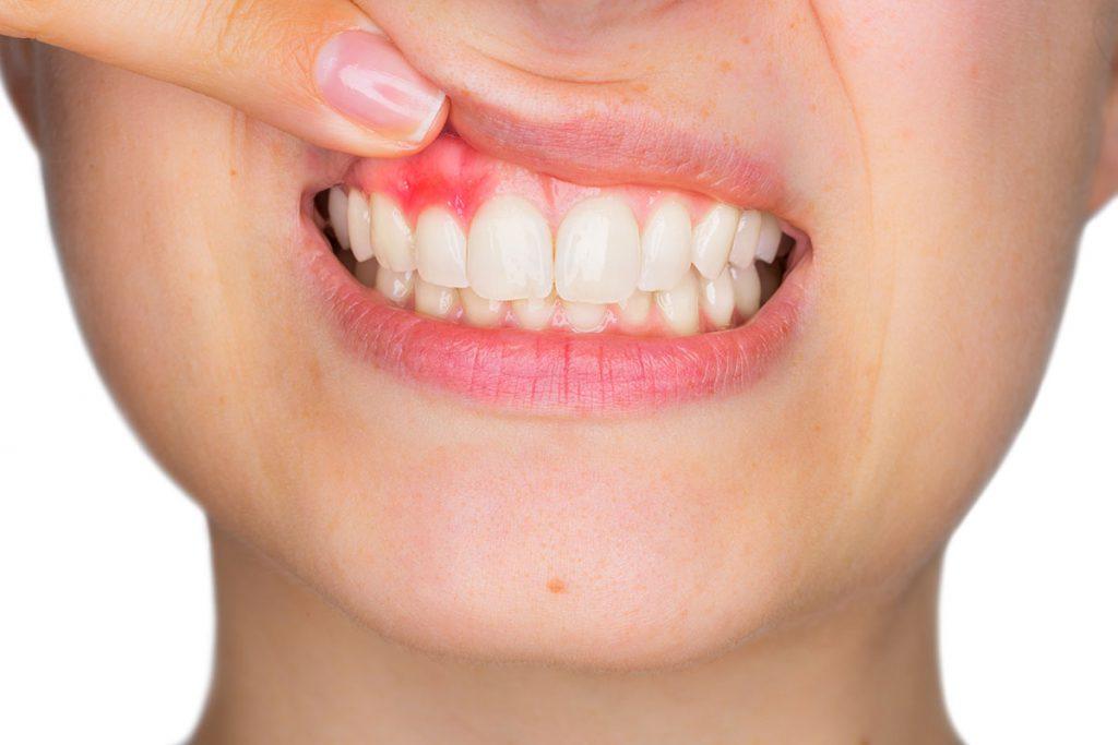 periodoncia burjassot