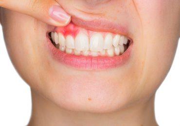 periodoncia valencia, periodoncia burjassot, protesis dental burjassot, clinica dental valencia, clinica dental burjassot, clinica dental paterna, clinica dental moncada