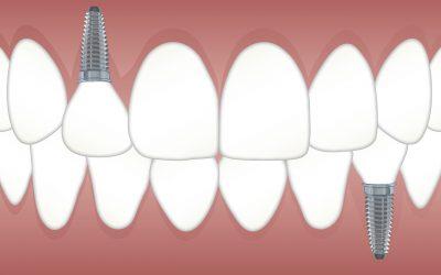 implantes dentales, precios implantes dentales, implantes dentales Burjassot