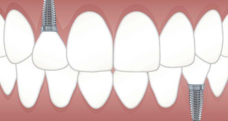 implantes dentales, precios implantes dentales