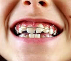 ortodoncia infantil burjassot