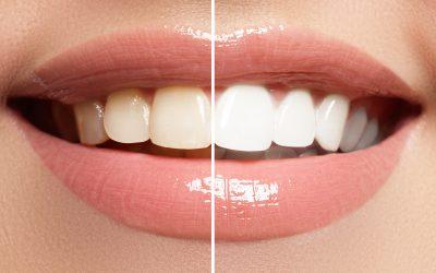 blanqueamiento dental valencia, estetica dental valencia, dentista valencia, clinica dental paterna