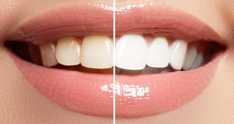 estetica dental valencia, dentista valencia, clinica dental paterna