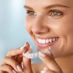 invisalign, ortodoncia invisalign, clínica dental valencia, clínica dental burjassot