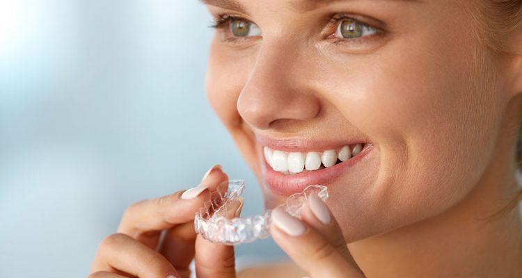 ortodoncistas burjasot, invisalign, ortodoncia invisalign, clínica dental valencia, clínica dental burjassot