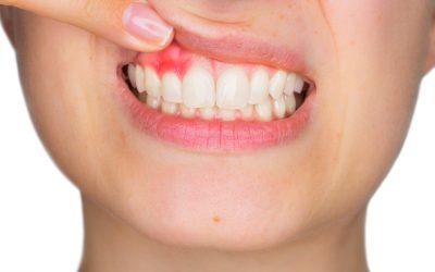 piorrea, perodontitis. dentistas en burjassot valencia