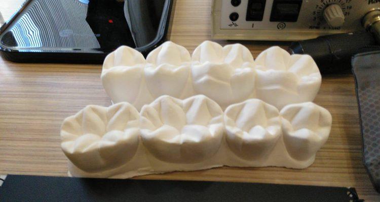 oclusion dental valencia, odontologos burjassot
